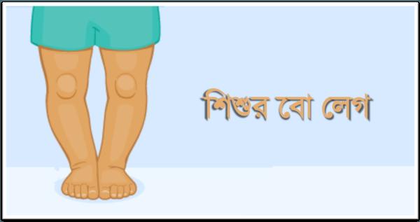 শিশুর বো লেগ (Bow-leg) বা বাঁকা পা