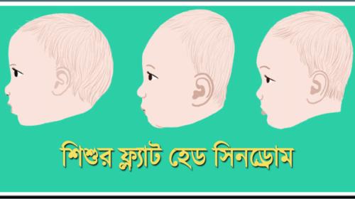 শিশুর মাথার কোন অংশ সমান হয়ে যাওয়া বা ফ্ল্যাট হেড সিনড্রোম (Flat head syndrome)