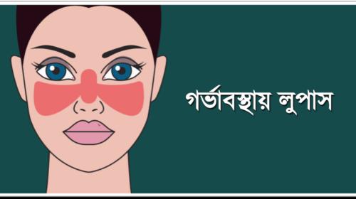 গর্ভাবস্থায় লুপাস (Lupus) : লক্ষণ, প্রভাব ও করণীয়
