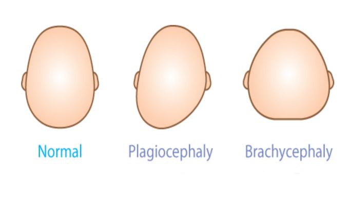 Plagiocephaly এবং Brachycephaly
